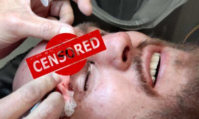 Brian Kelleher UFC 258 MMA Frontkick Online skada